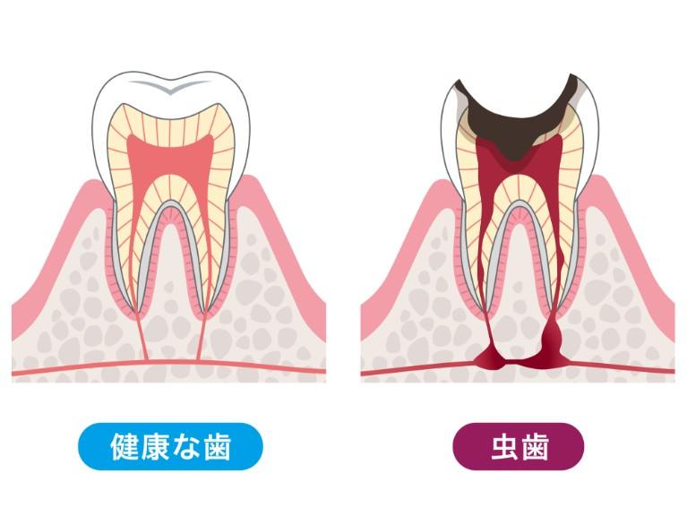 できる限り歯と神経を残す