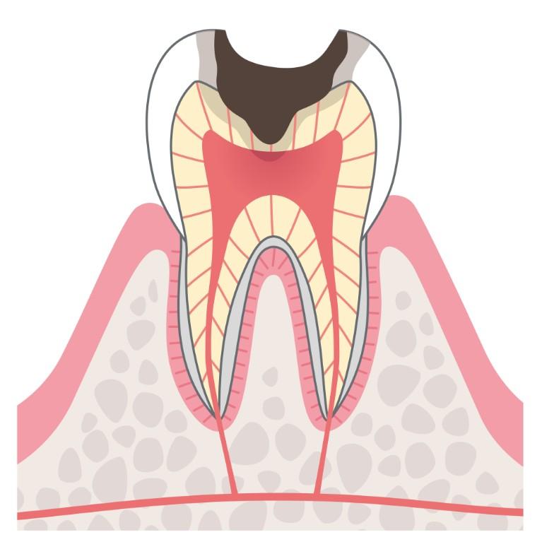C3:神経のむし歯