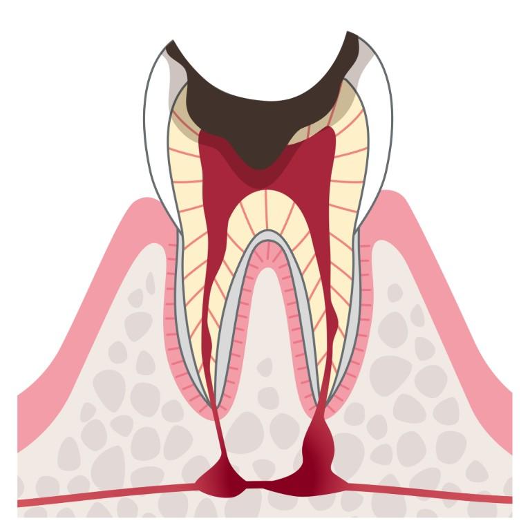 C4:歯根のむし歯
