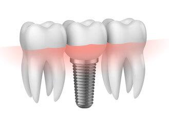 の歯への負担がない